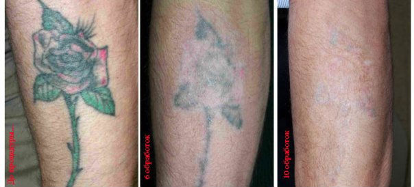 Как в домашних условиях вывести татуировку в домашних условиях